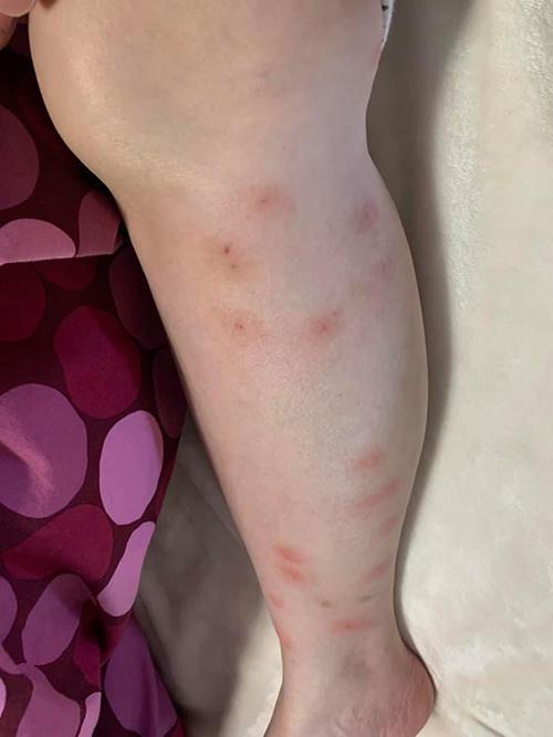 flea bites on legs